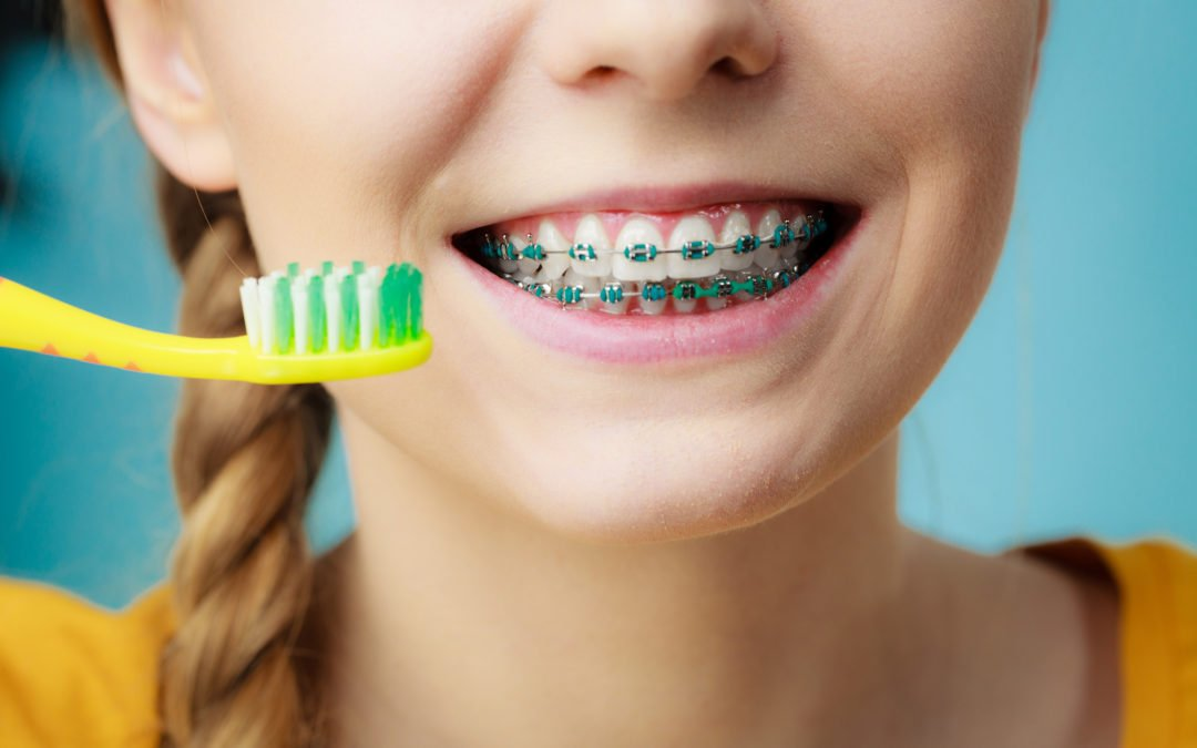 10 Things to Consider Before Getting Braces